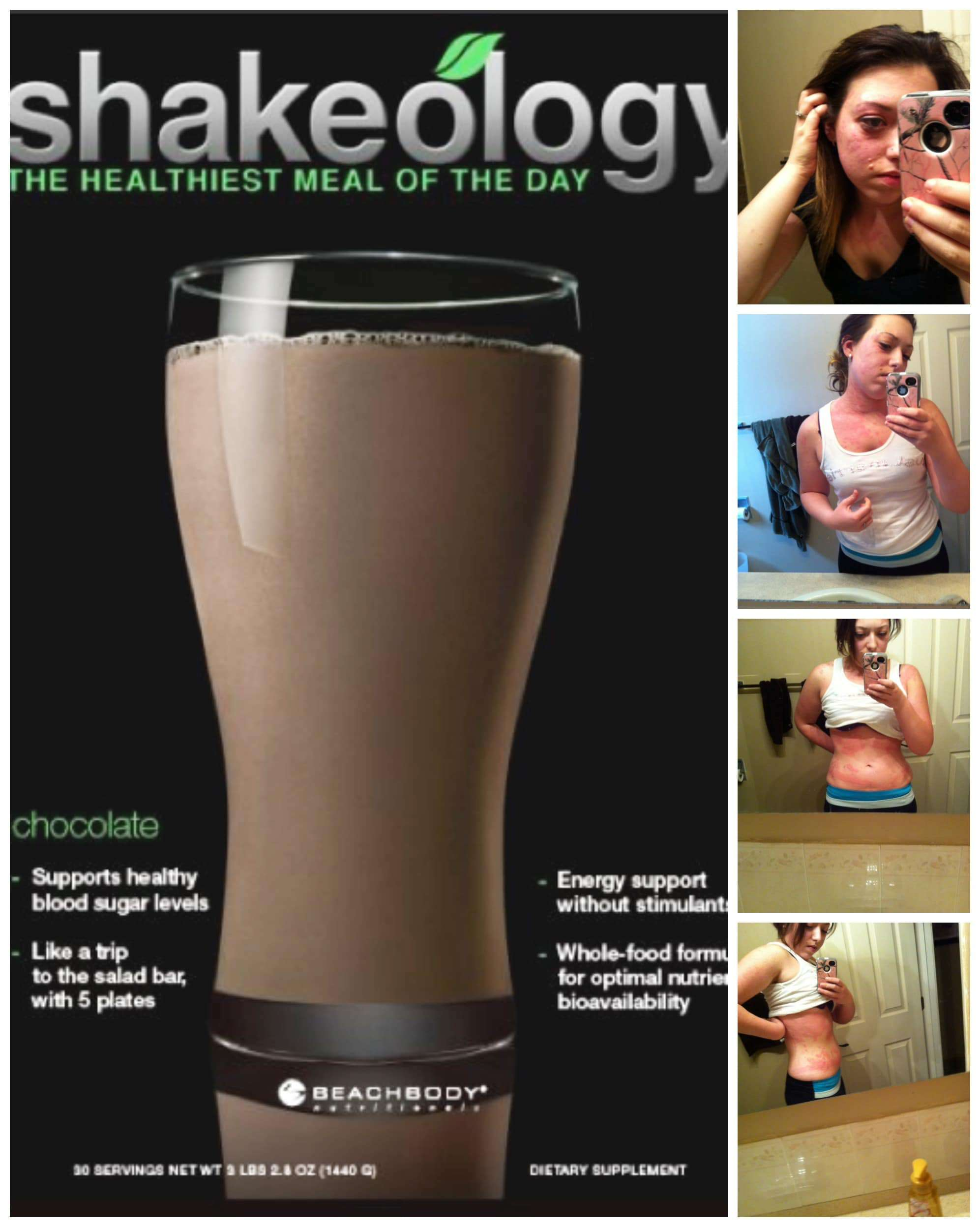 How Shakeology helped ease my symptoms of chronic hives, banished my cravings, gave me energy and helped me change my life.