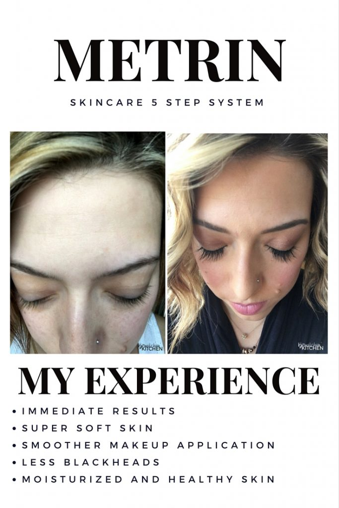 My two month experience with Metrin Skincare. This skincare system has left me with super soft skin, less blackheads and my makeup application is a lot smoother. Full review on the blog.